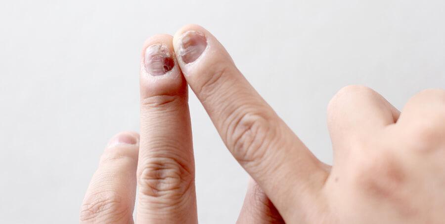 Bienfaits Boswellia - Arthrite | Société de l'arthrite